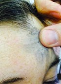 Ash_forehead